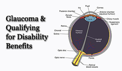 Glaucoma Disability lawyer