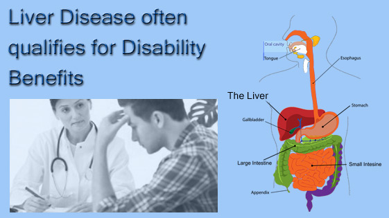 liver disease disability benefits
